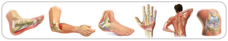 tendonitis pain